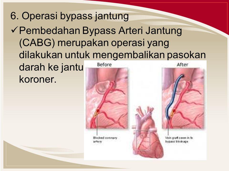 6. Operasi bypass jantung