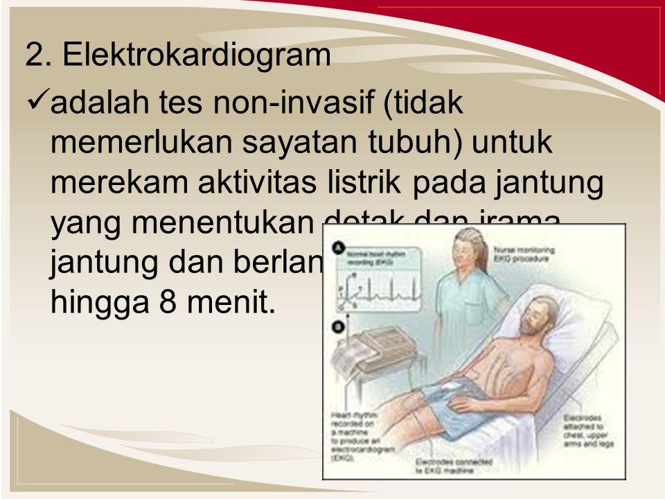 2. Elektrokardiogram
