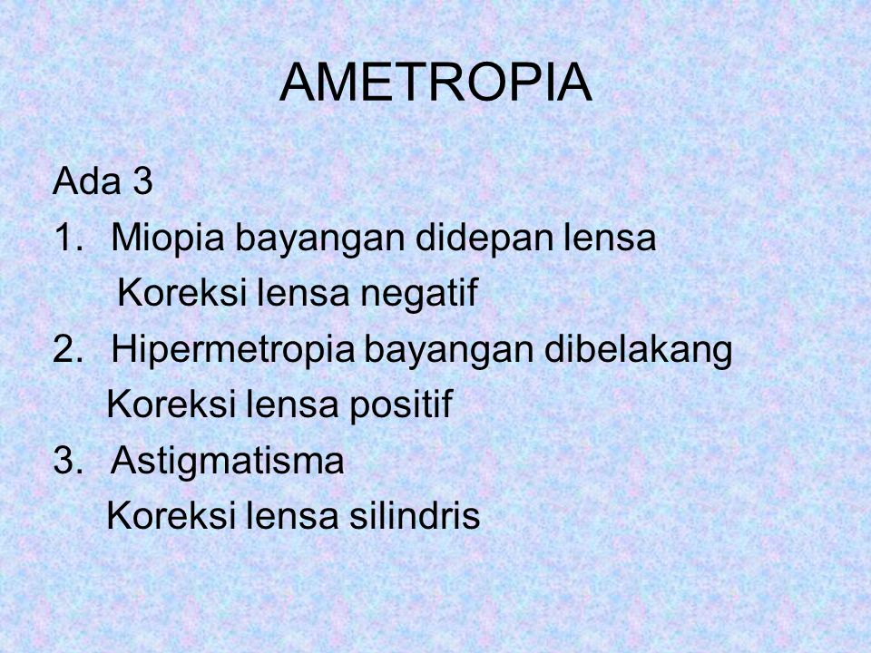 AMETROPIA Ada 3 Miopia bayangan didepan lensa Koreksi lensa negatif