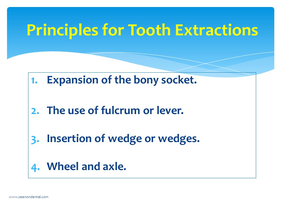 Principles for Tooth Extractions