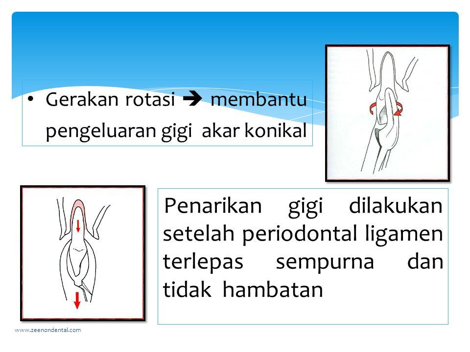Gerakan rotasi  membantu pengeluaran gigi akar konikal
