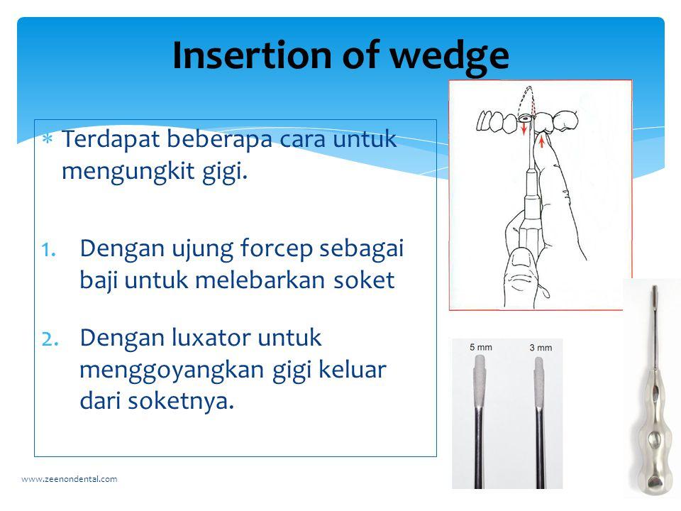 Insertion of wedge Terdapat beberapa cara untuk mengungkit gigi.