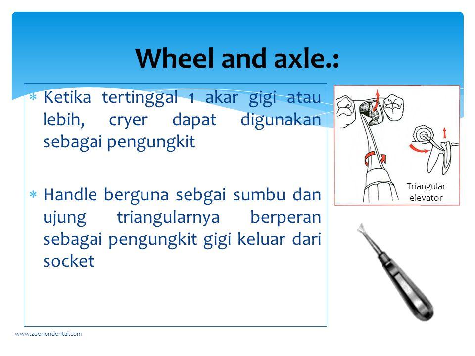 Wheel and axle.: Ketika tertinggal 1 akar gigi atau lebih, cryer dapat digunakan sebagai pengungkit.