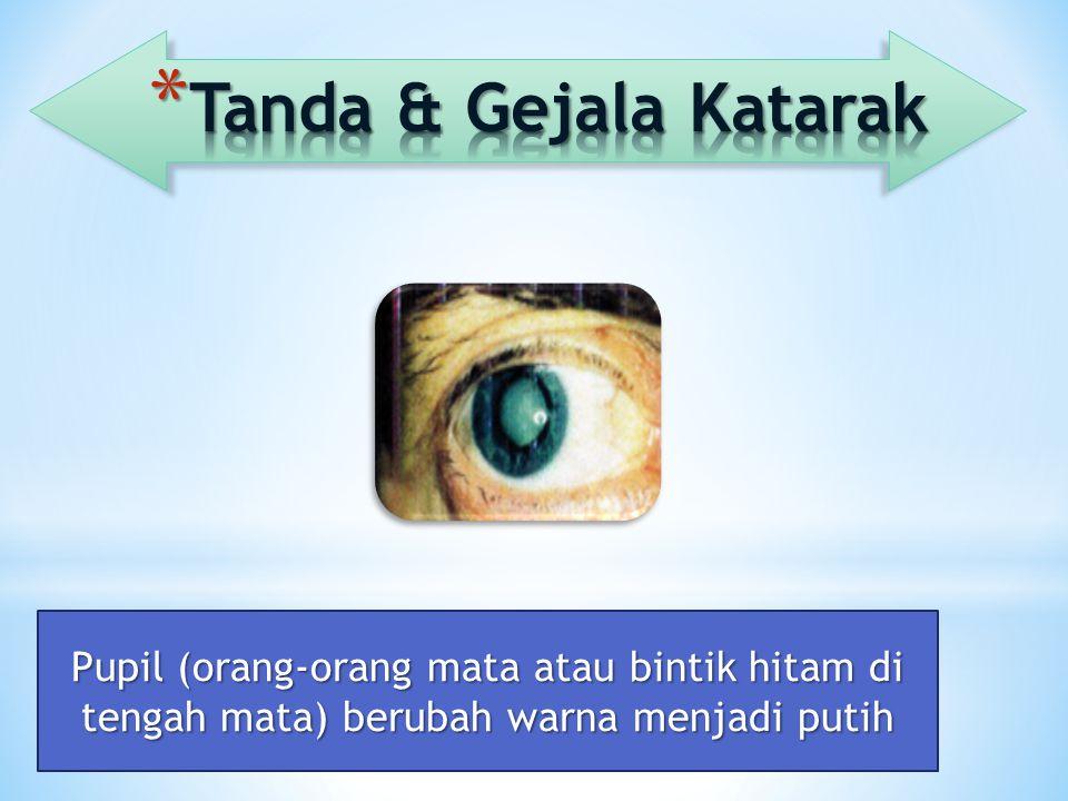 Tanda & Gejala Katarak Pupil (orang-orang mata atau bintik hitam di tengah mata) berubah warna menjadi putih.