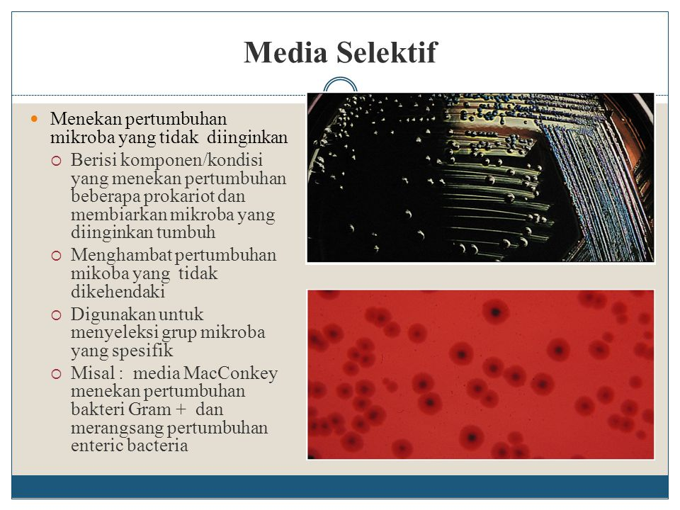 Media Selektif Menekan pertumbuhan mikroba yang tidak diinginkan