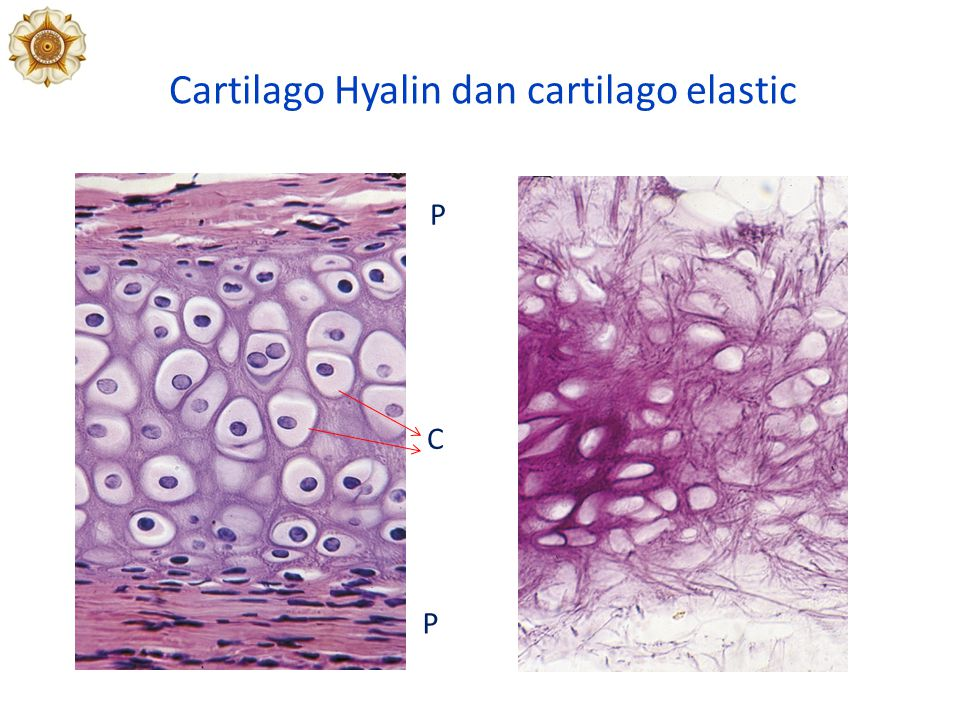 Cartilago Hyalin dan cartilago elastic