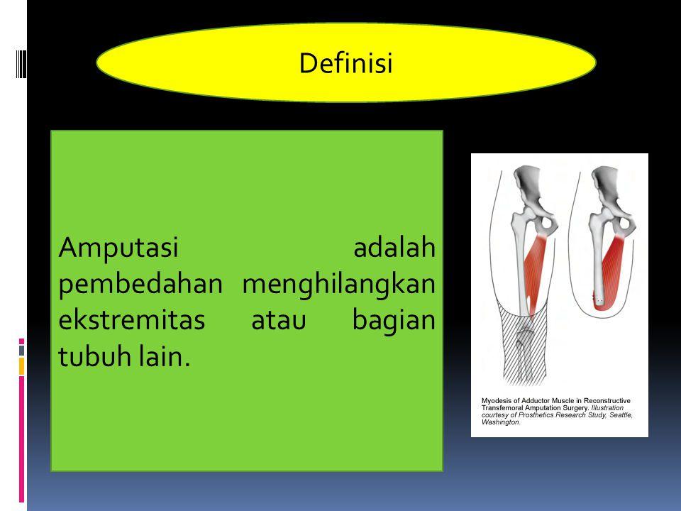 Definisi Amputasi adalah pembedahan menghilangkan ekstremitas atau bagian tubuh lain.