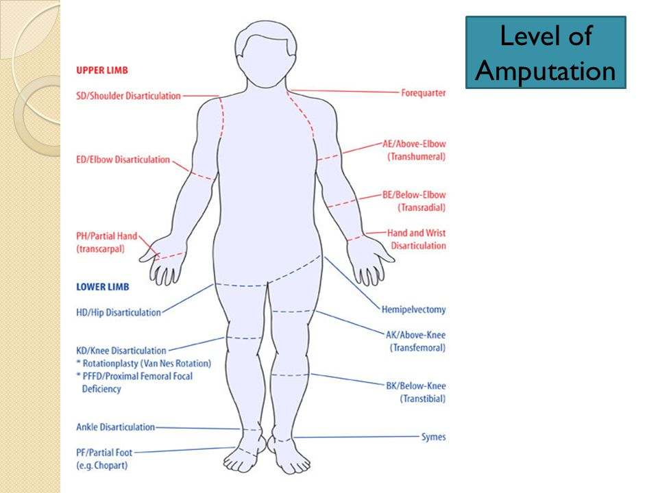 Level of Amputation