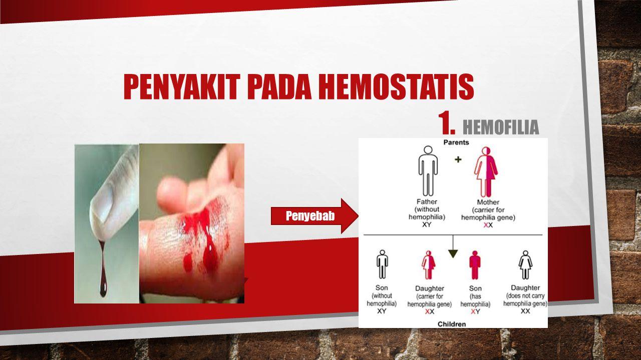 PENYAKIT PADA HEMOSTATIS