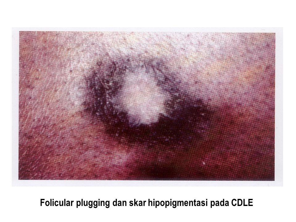 Folicular plugging dan skar hipopigmentasi pada CDLE