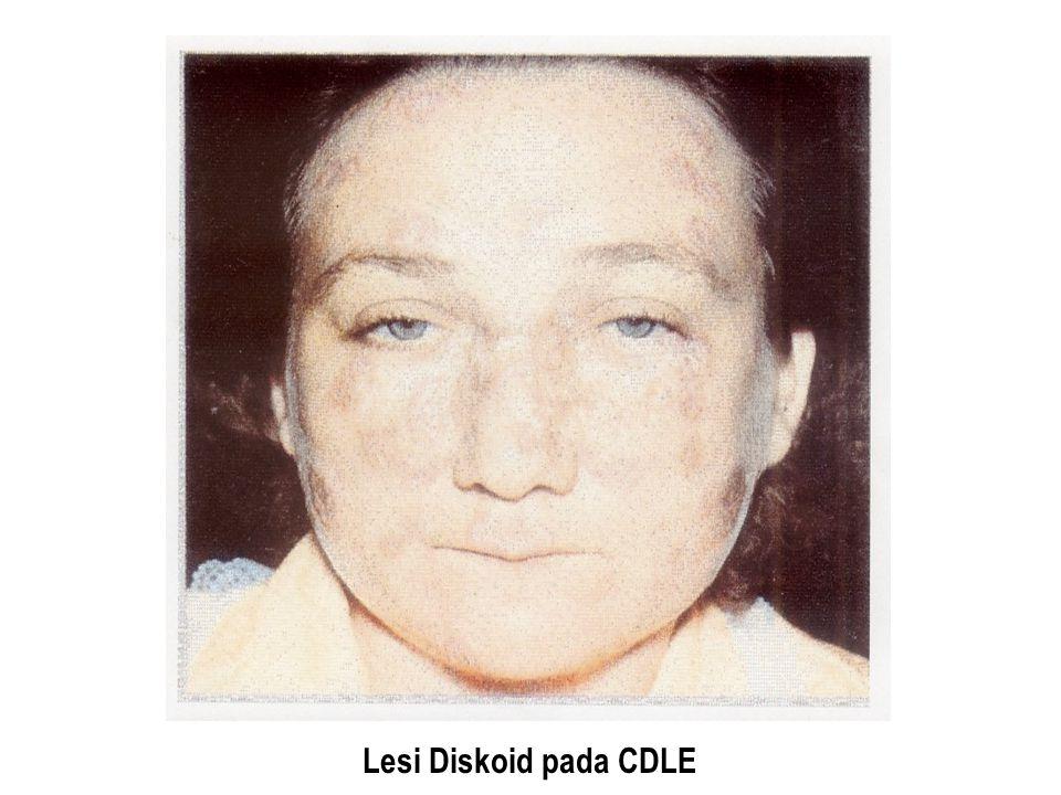 Lesi Diskoid pada CDLE