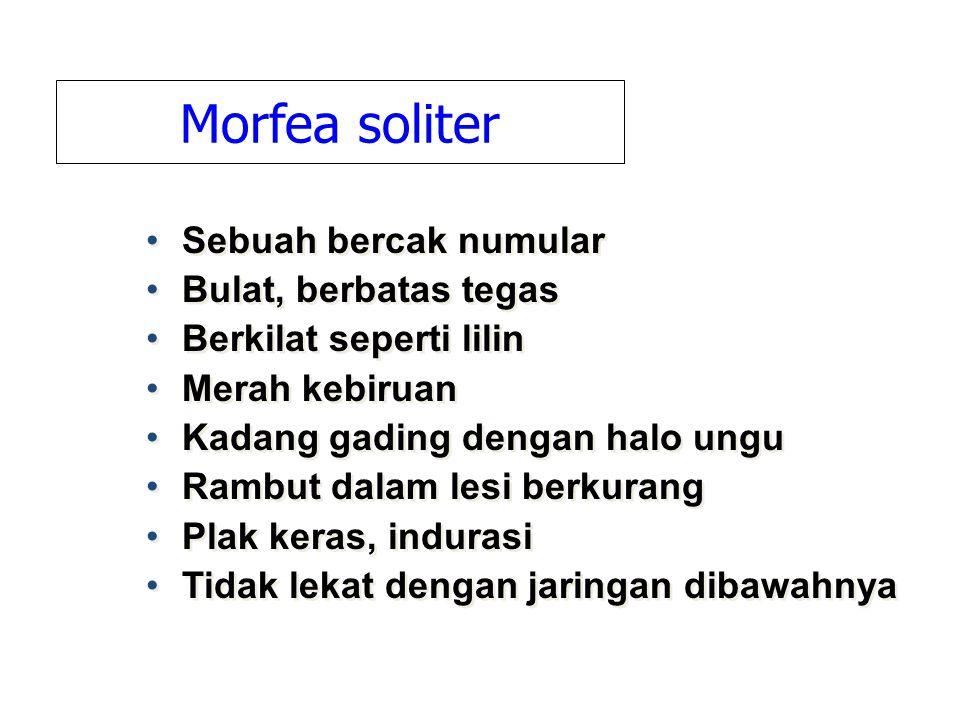 Morfea soliter Sebuah bercak numular Bulat, berbatas tegas
