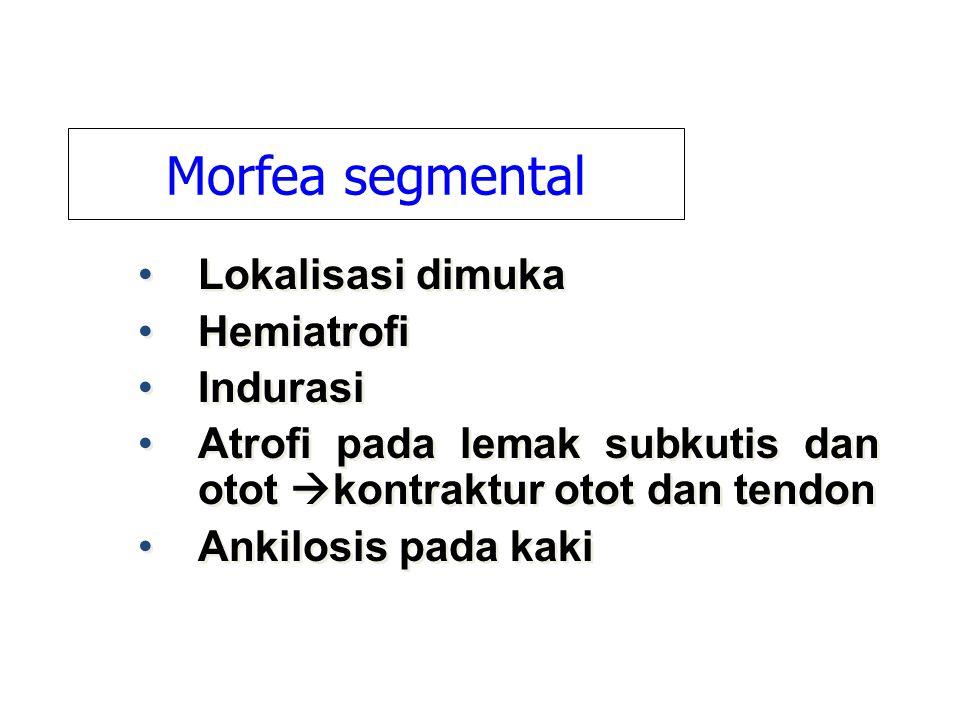 Morfea segmental Lokalisasi dimuka Hemiatrofi Indurasi