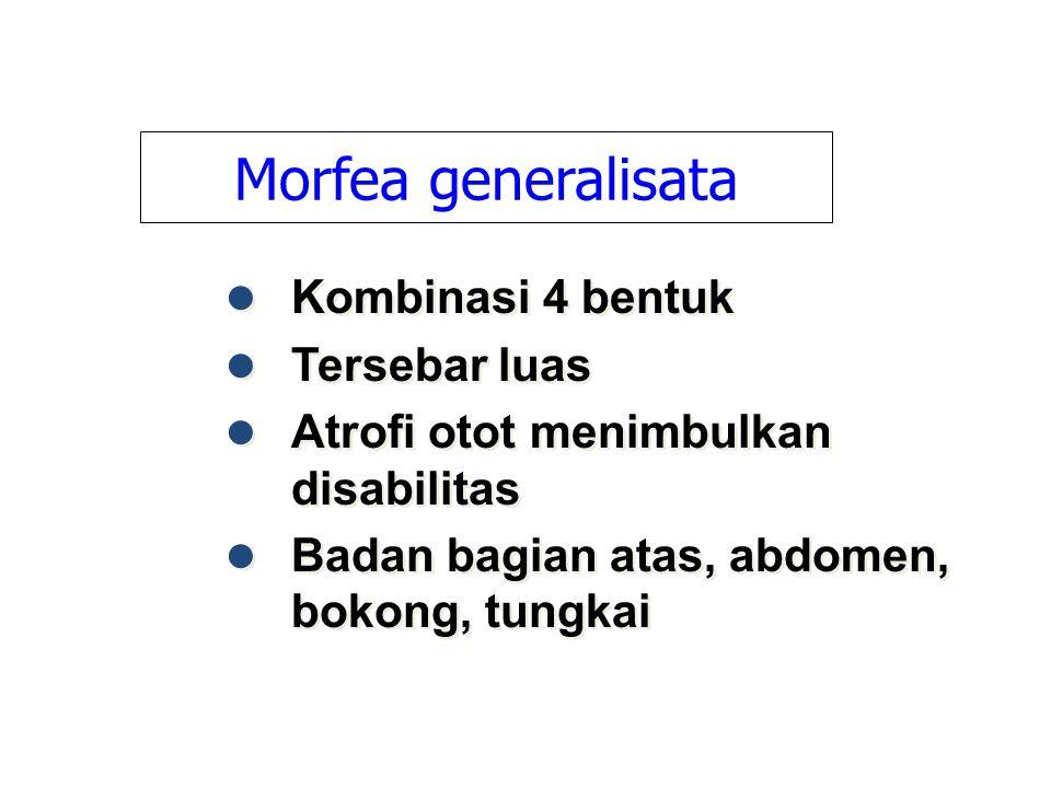Morfea generalisata Kombinasi 4 bentuk Tersebar luas