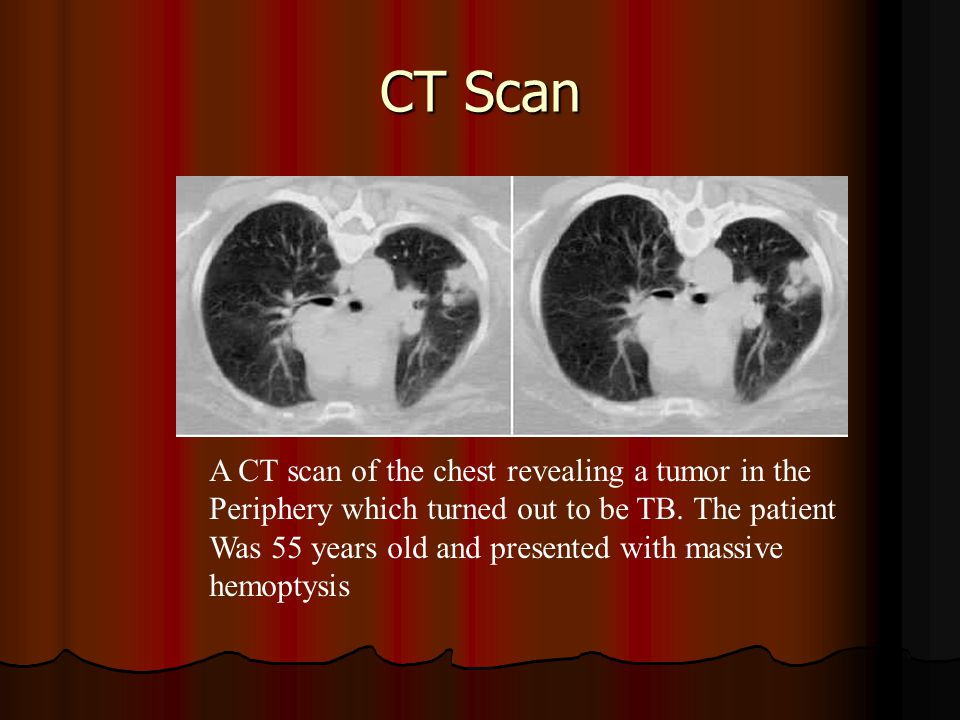 CT Scan A CT scan of the chest revealing a tumor in the