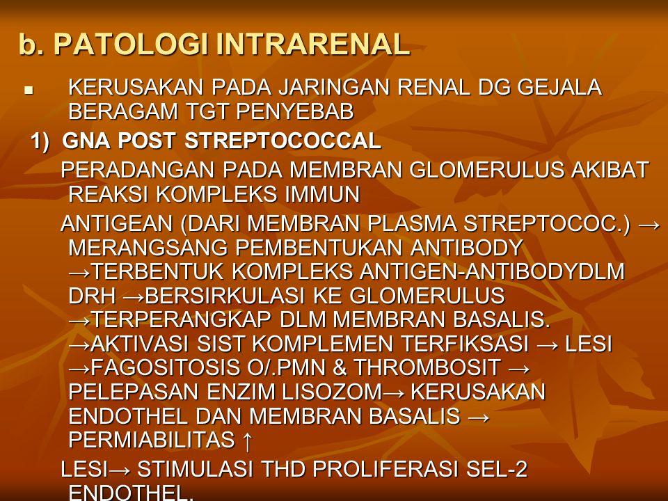 b. PATOLOGI INTRARENAL KERUSAKAN PADA JARINGAN RENAL DG GEJALA BERAGAM TGT PENYEBAB. 1) GNA POST STREPTOCOCCAL.