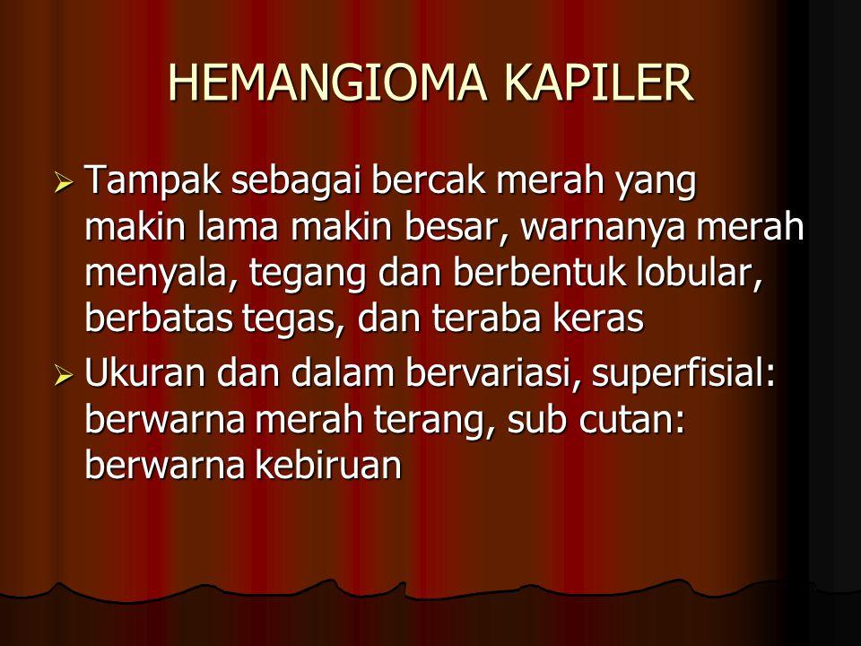 HEMANGIOMA KAPILER