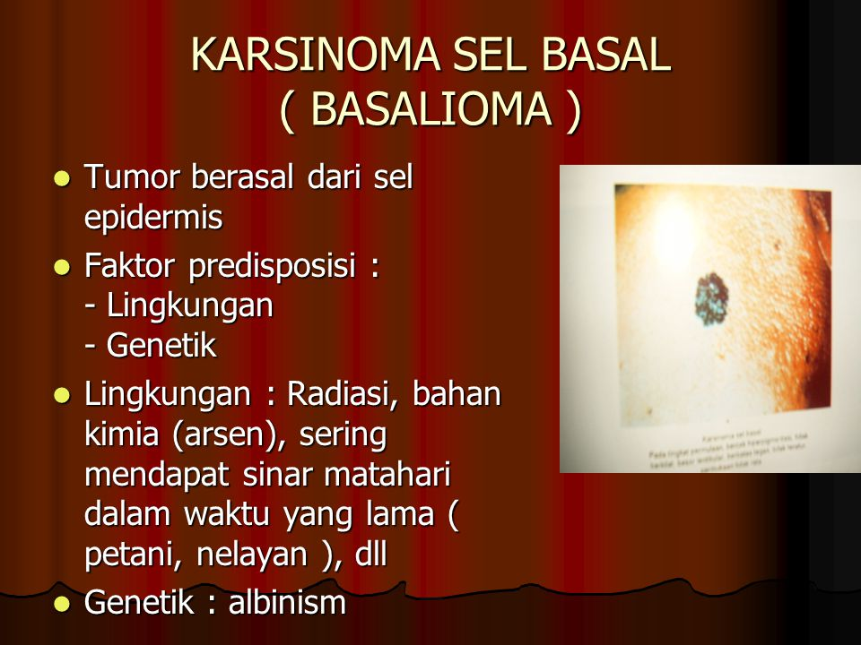 KARSINOMA SEL BASAL ( BASALIOMA )