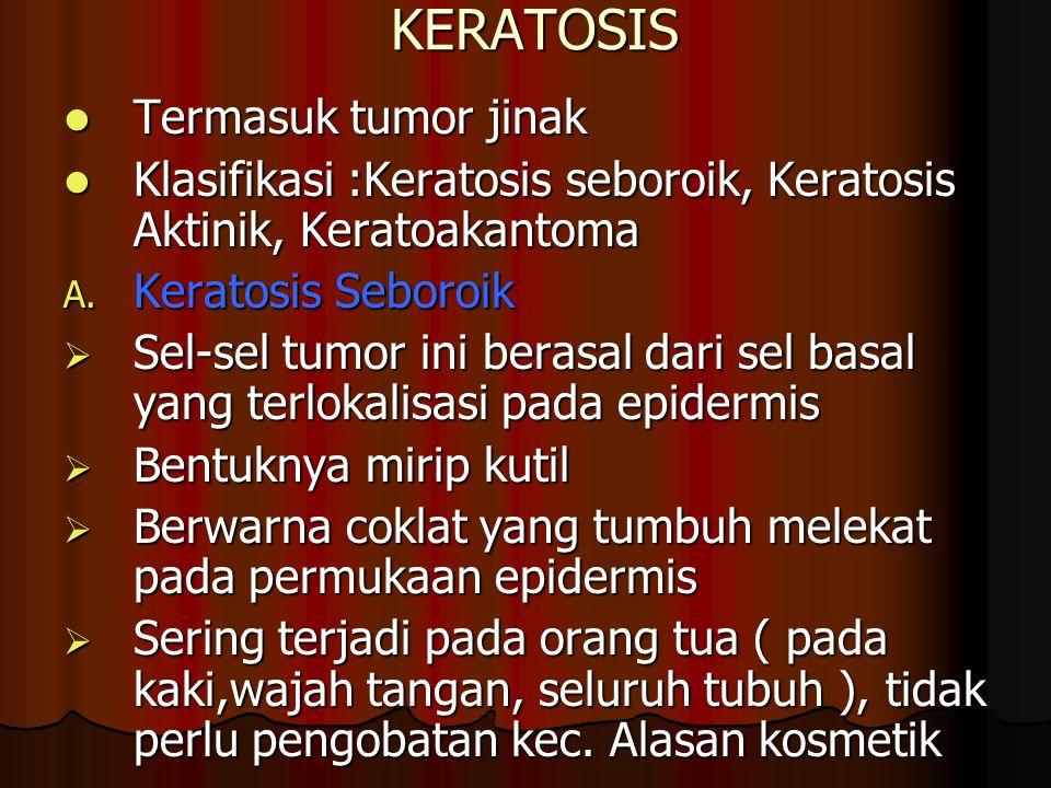 KERATOSIS Termasuk tumor jinak