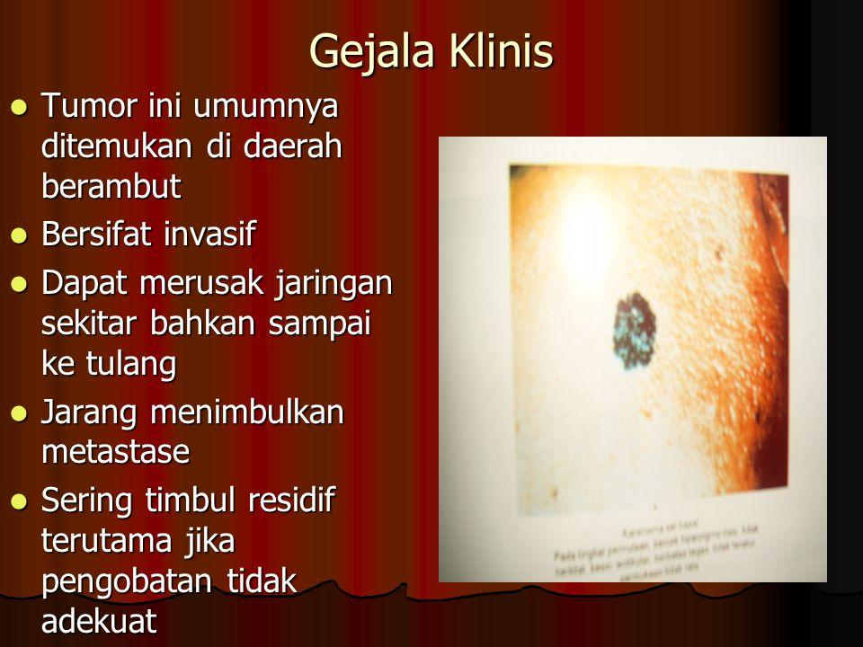 Gejala Klinis Tumor ini umumnya ditemukan di daerah berambut