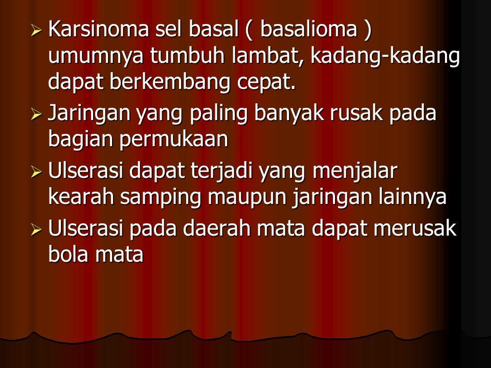 Karsinoma sel basal ( basalioma ) umumnya tumbuh lambat, kadang-kadang dapat berkembang cepat.