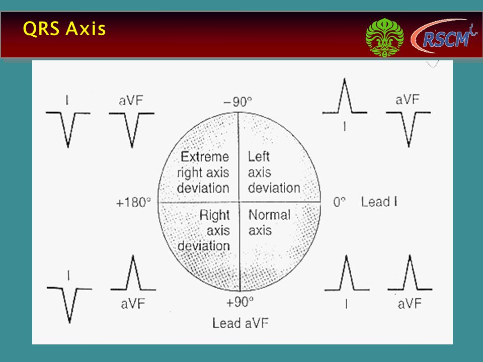 QRS Axis 13