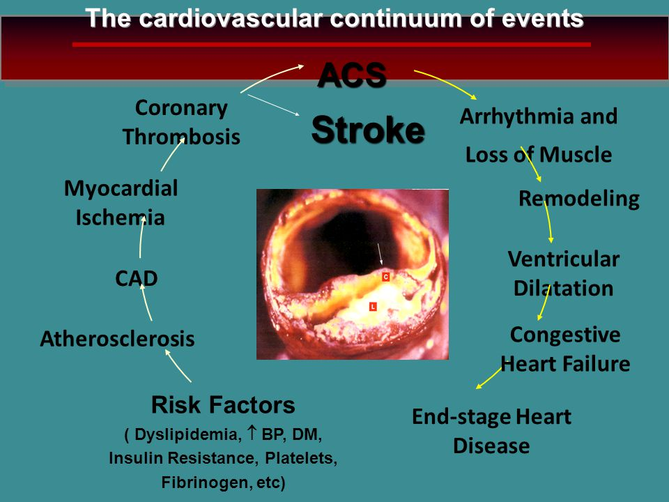 Stroke ACS The cardiovascular continuum of events Coronary Thrombosis