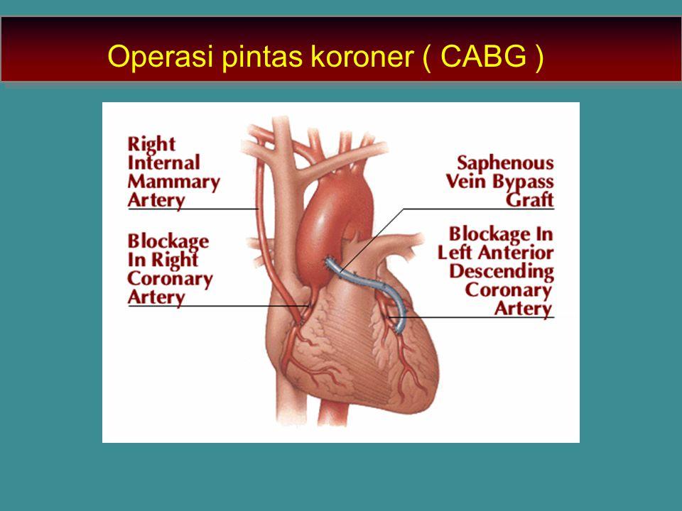 Operasi pintas koroner ( CABG )