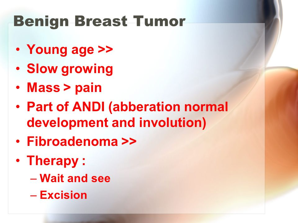 Benign Breast Tumor Young age >> Slow growing Mass > pain