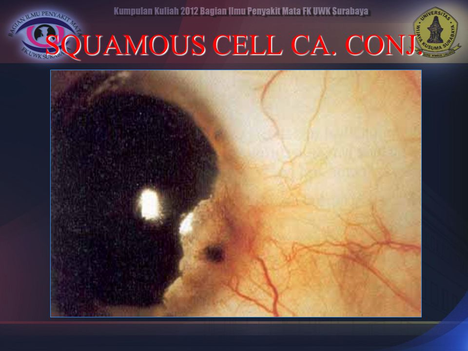 SQUAMOUS CELL CA. CONJ.
