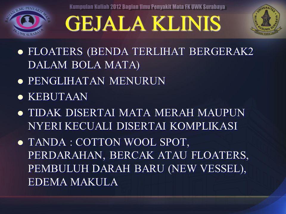GEJALA KLINIS FLOATERS (BENDA TERLIHAT BERGERAK2 DALAM BOLA MATA)