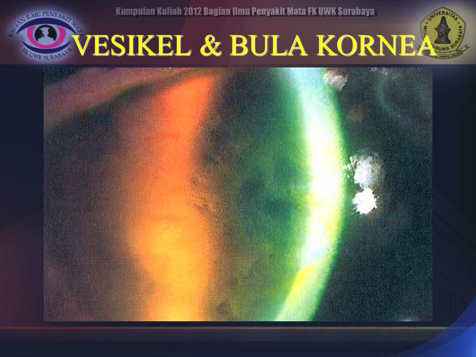 VESIKEL & BULA KORNEA