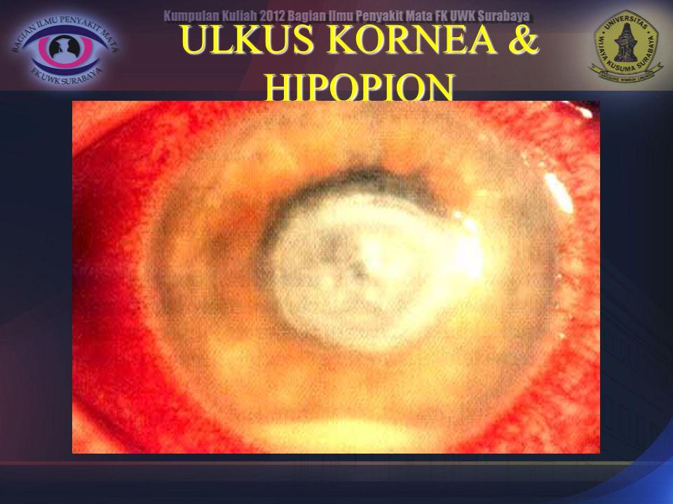 ULKUS KORNEA & HIPOPION