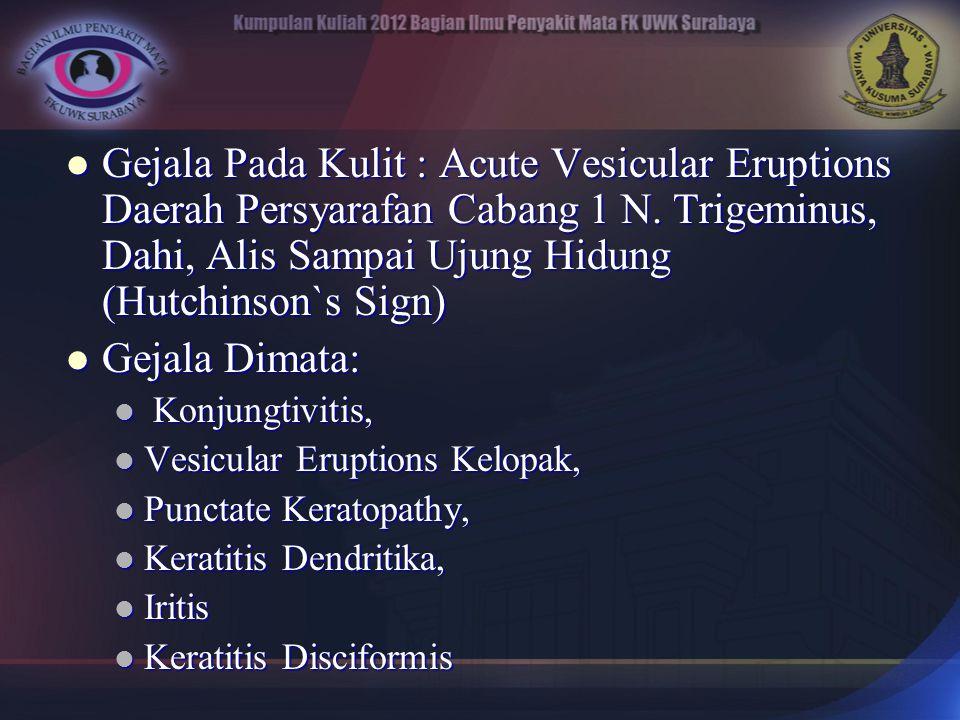 Gejala Pada Kulit : Acute Vesicular Eruptions Daerah Persyarafan Cabang 1 N. Trigeminus, Dahi, Alis Sampai Ujung Hidung (Hutchinson`s Sign)