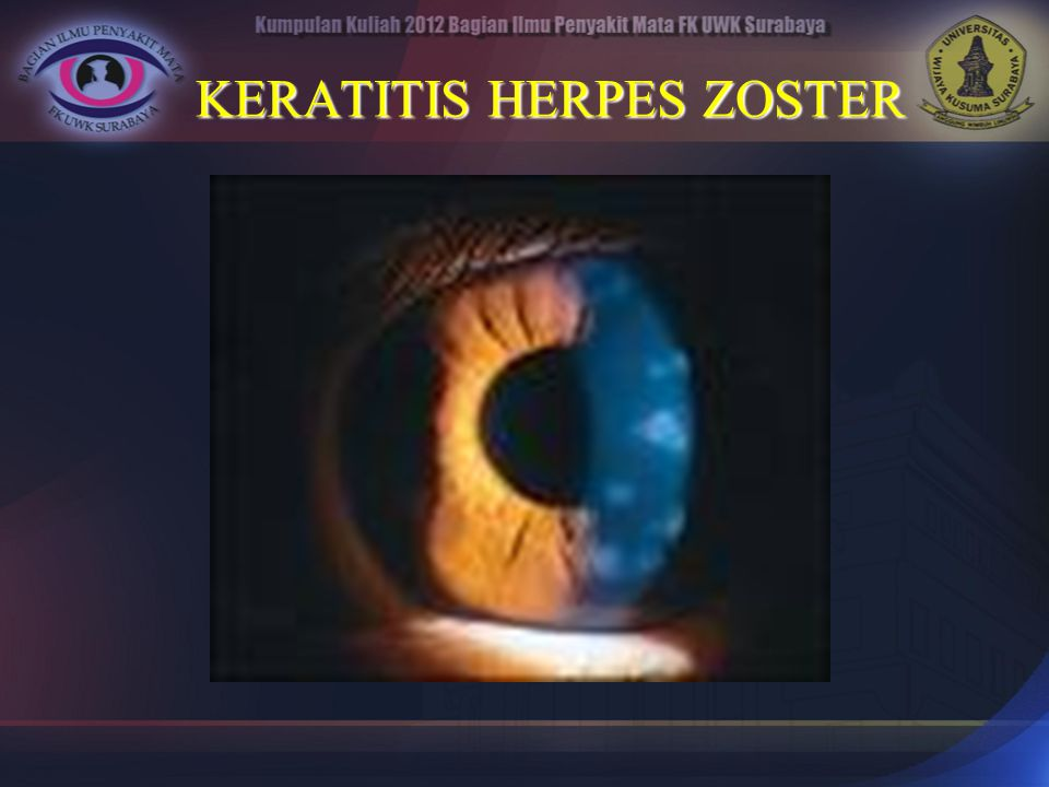 KERATITIS HERPES ZOSTER