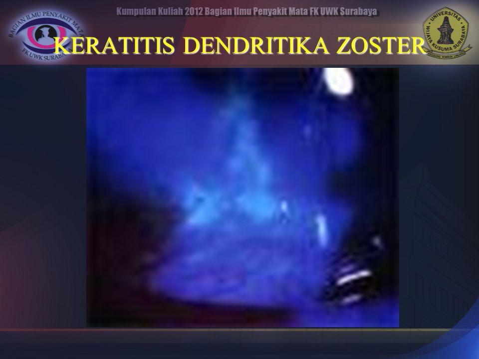 KERATITIS DENDRITIKA ZOSTER