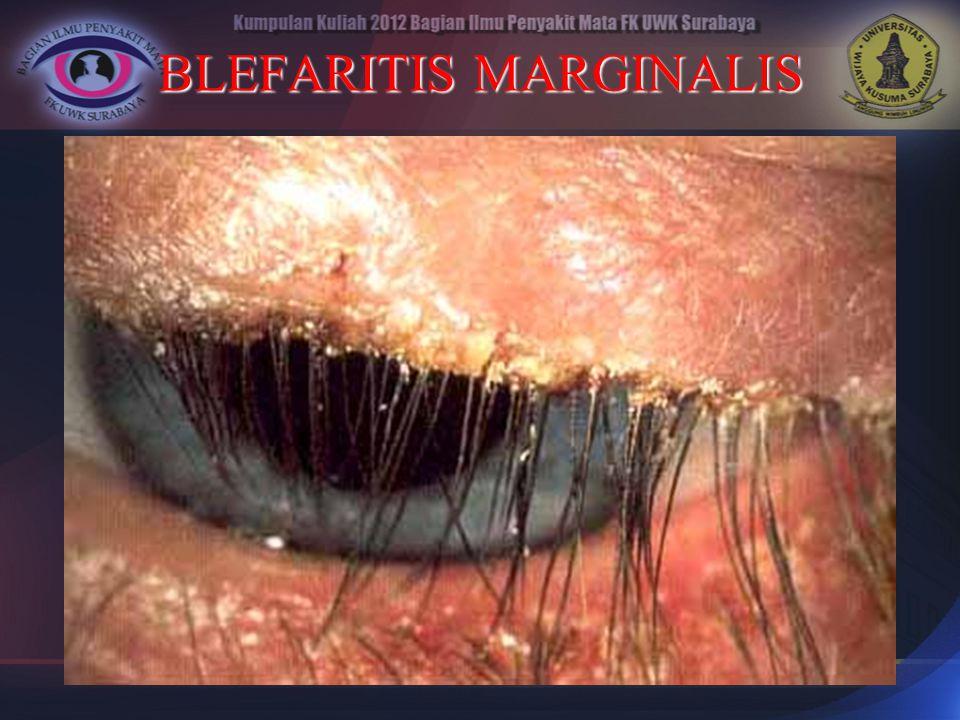 BLEFARITIS MARGINALIS