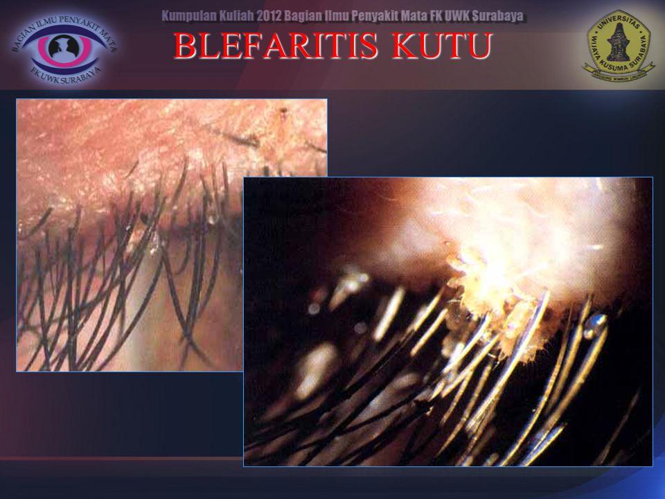 BLEFARITIS KUTU