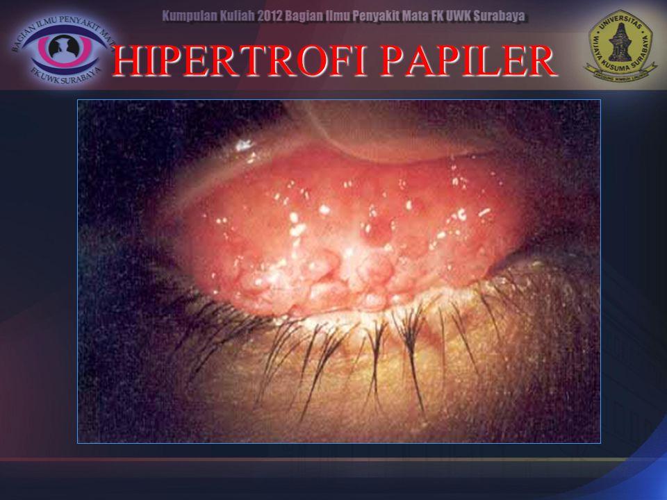 HIPERTROFI PAPILER