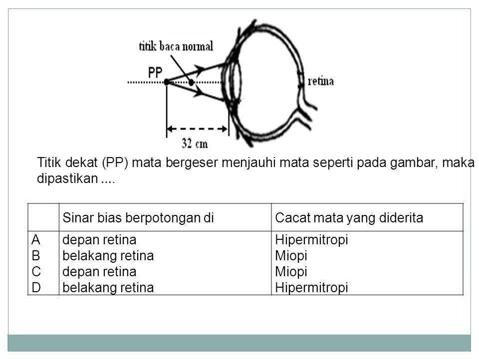 Titik dekat (PP) mata bergeser menjauhi mata seperti pada gambar, maka dipastikan ….