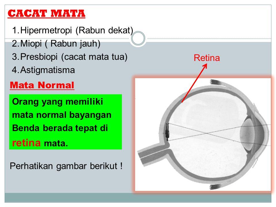 CACAT MATA 1. Hipermetropi (Rabun dekat) 2. Miopi ( Rabun jauh) 3. Presbiopi (cacat mata tua) 4. Astigmatisma