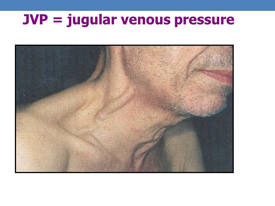 JVP = jugular venous pressure