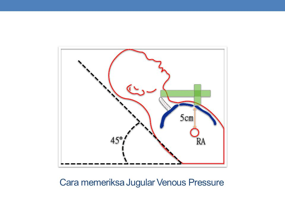 Cara memeriksa Jugular Venous Pressure