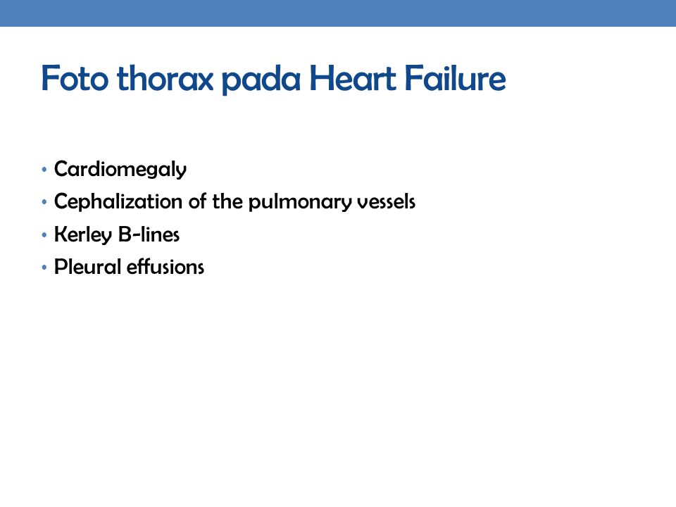 Foto thorax pada Heart Failure