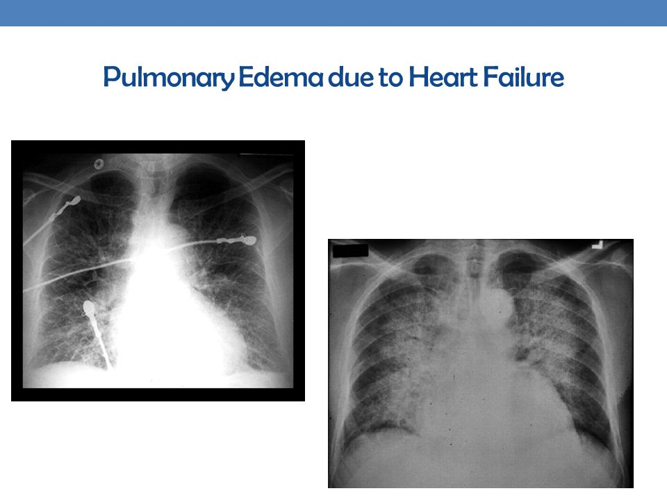 Pulmonary Edema due to Heart Failure