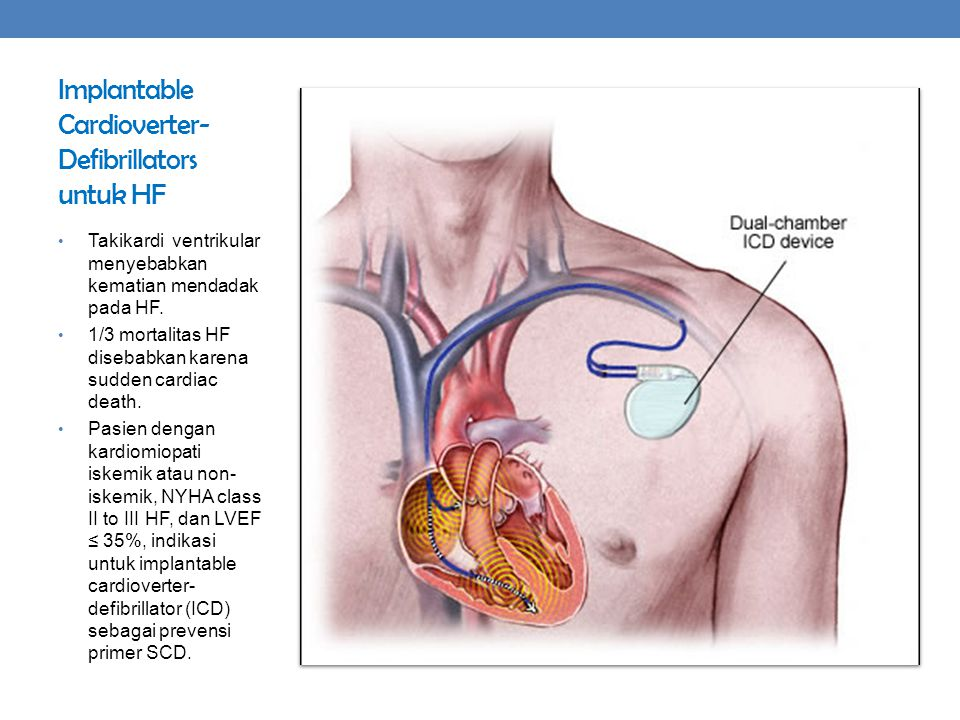 Implantable Cardioverter-Defibrillators untuk HF
