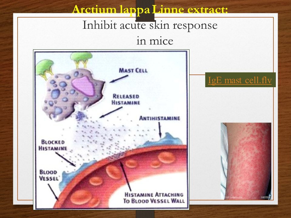 Arctium lappa Linne extract: Inhibit acute skin response in mice