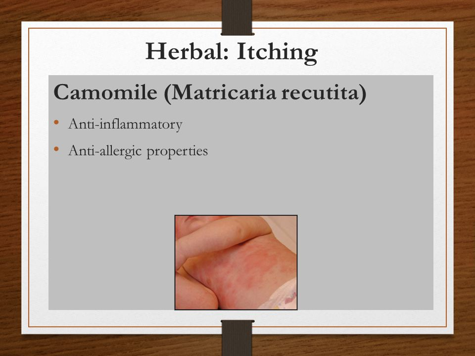 Herbal: Itching Camomile (Matricaria recutita) Anti-inflammatory
