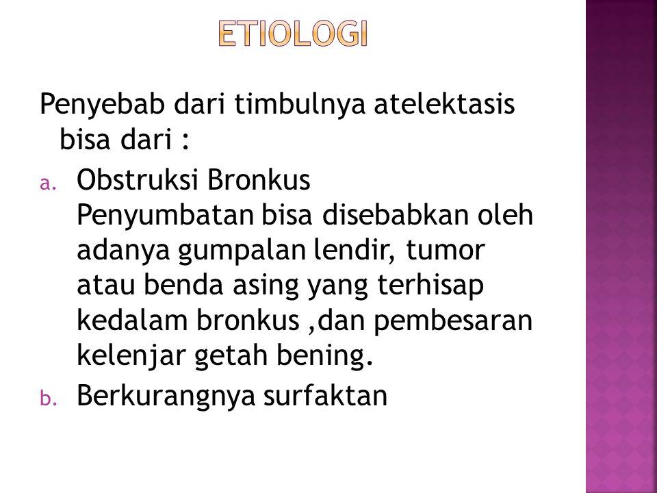 Etiologi Penyebab dari timbulnya atelektasis bisa dari :