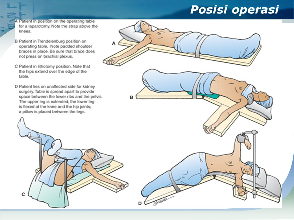 Posisi operasi